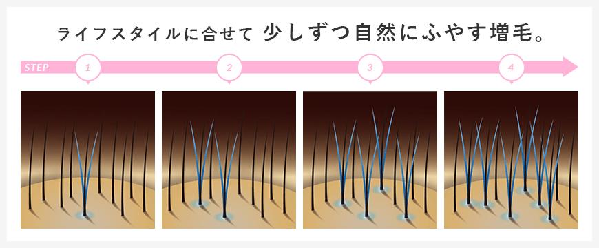 スタンドヘアーの増毛システム「ヘアプラビューティー」