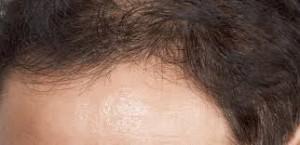 薄毛、抜け毛、脱毛症の知っておきたい原因と対応策!!その二 thumb